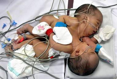 INDONESIA-HEALTH-CONJOIN-TWINS
