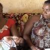 Brasilien: 462 bestätigte Fälle von Mikrozephalie