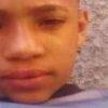 Brasilien: Über achtzig Kinder Opfer von Streukugeln